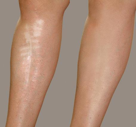 Before and after leg scar Psoriasis and swimming pool chemicals